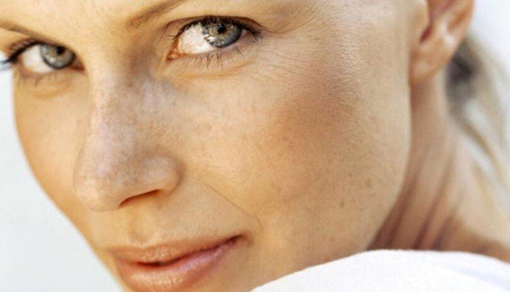 manchas-faciales-como-prevenirlas-y-tratarlas