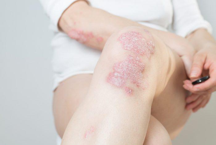 psoriasis-causas-sintomas-y-tratamientos